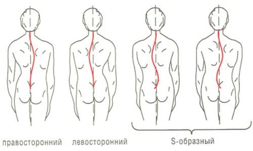 S-образный сколиоз схема