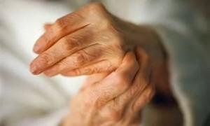 Артрит кисти рук лечение