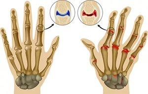 Артрит на пальцах рук - схема