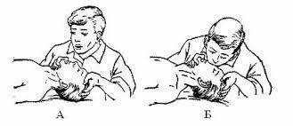 Искусственное дыхание методом «изо рта в нос» : а – выдох пострадавшего; б – вдувание воздуха При этом закрывают соответственно нос или рот