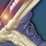 Тендинит сухожилия