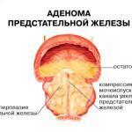 Лечение аденомы простаты народными средствами, травами