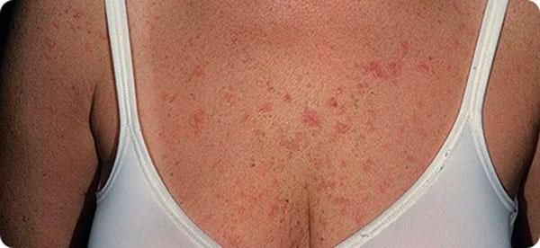 Алергическая сыпь на груди