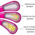 Церебральный атеросклероз сосудов головного мозга: лечение