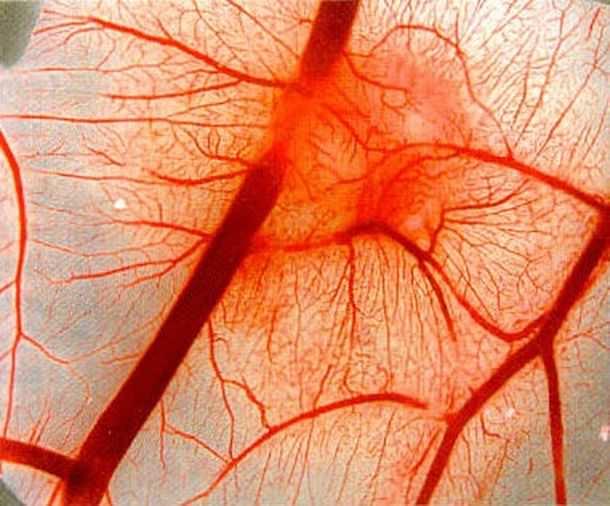 Болезнь Шенлейна-Геноха или геморрагический васкулит