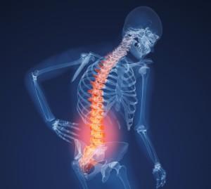 Боли в спине при остеопорозе