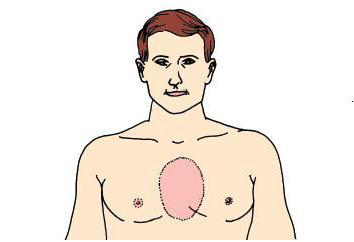 Боль за грудиной посередине: что делать