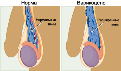 Варикоцеле: операция, ход операции