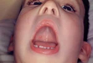 Ветрянка во рту у ребенка