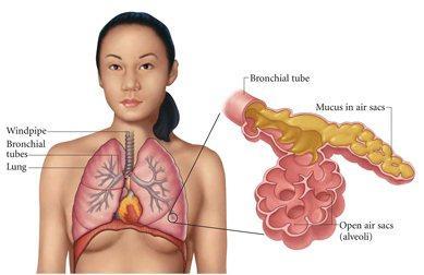 Воспаление легких - пневмония