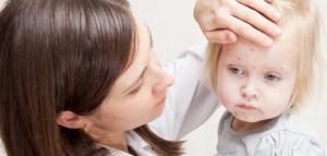 Врач осматривает ребенка, больного ветрянкой