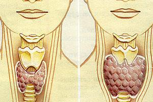 Гипотиреоз на схеме