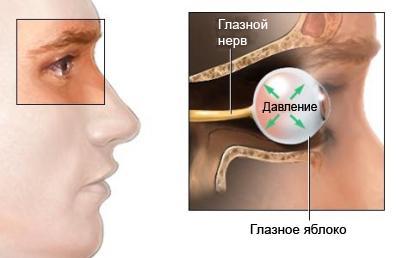 Глазное заболевание - глаукома