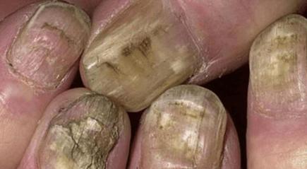 Грибок ногтей в запущенной форме