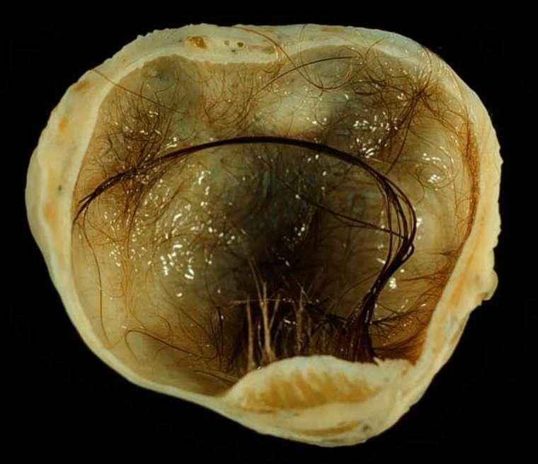 Дермоидная киста яичника: причины возникновения