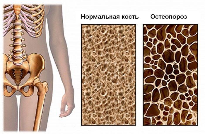 Остеопороз диффузный