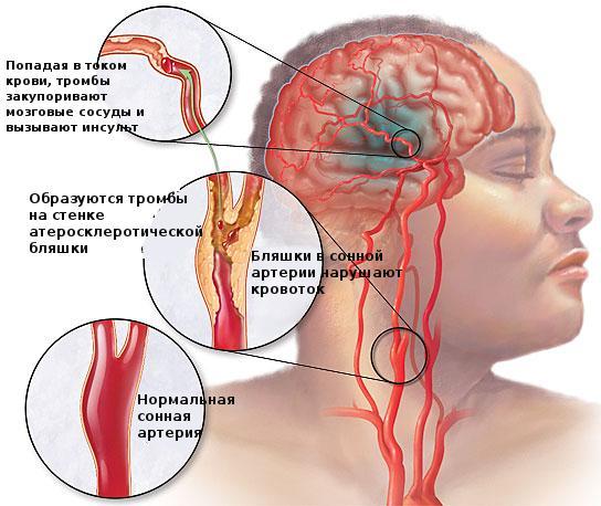 Инсульт ишемический правая сторона: последствия