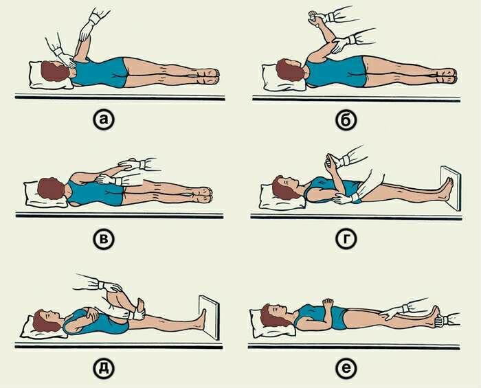 Комплекс пассивных упражнений после инсульта