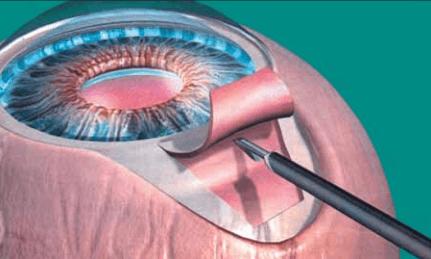 Миниатюрный дренаж имплантируют под склеральный лоскут