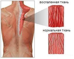Миозит мышц спины - схема