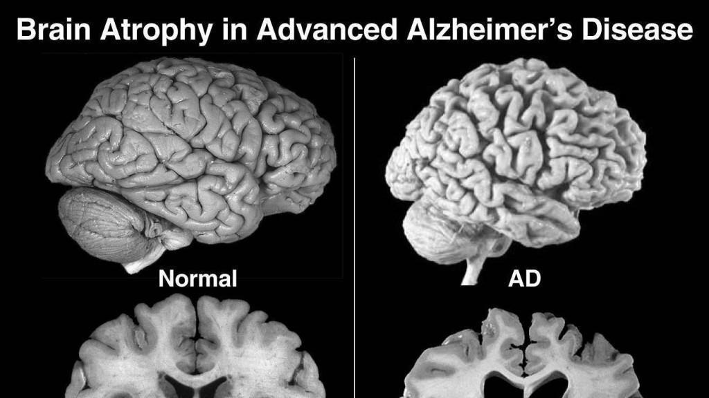 Мозг при болезни Альцгеймера