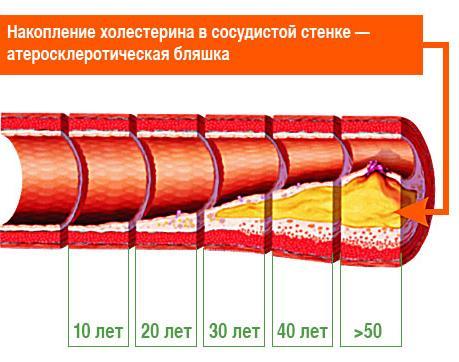 Накопление холестерина и атеросклероз