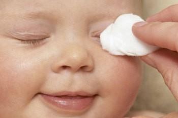 Не нужно закапывать глаза ребенка молоком