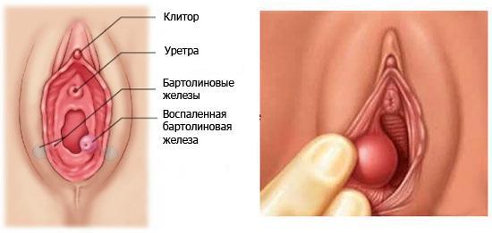 Образование кисты бартолиновой железы