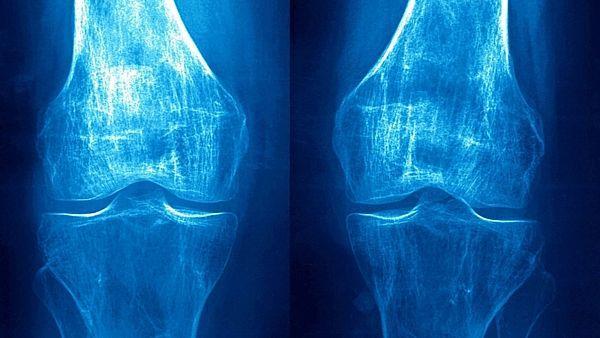 Диффузный остеопороз костей поясничного отдела позвоночника: что это такое, причины, лечение