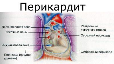 Перикардит