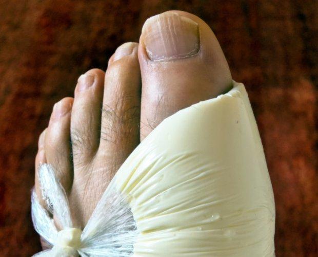 Подагра - хронический недуг