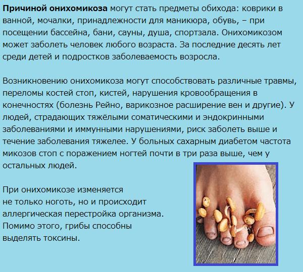 Причины онихомикоза
