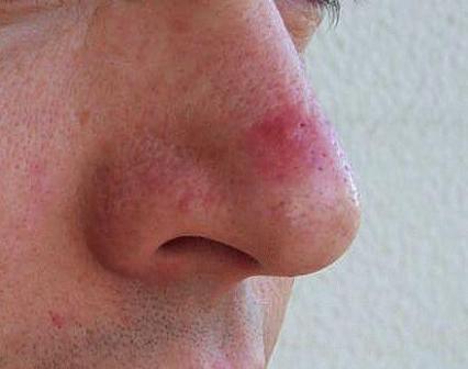 Прыщи на носу: причины у мужчин