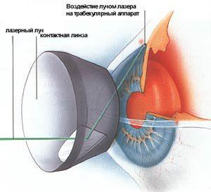 Проведение лазерной трабекулопластики