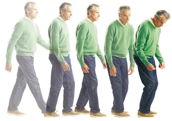 Прогрессирование Паркинсонизма