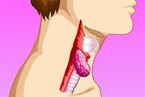Рак горла – признаки, симптомы