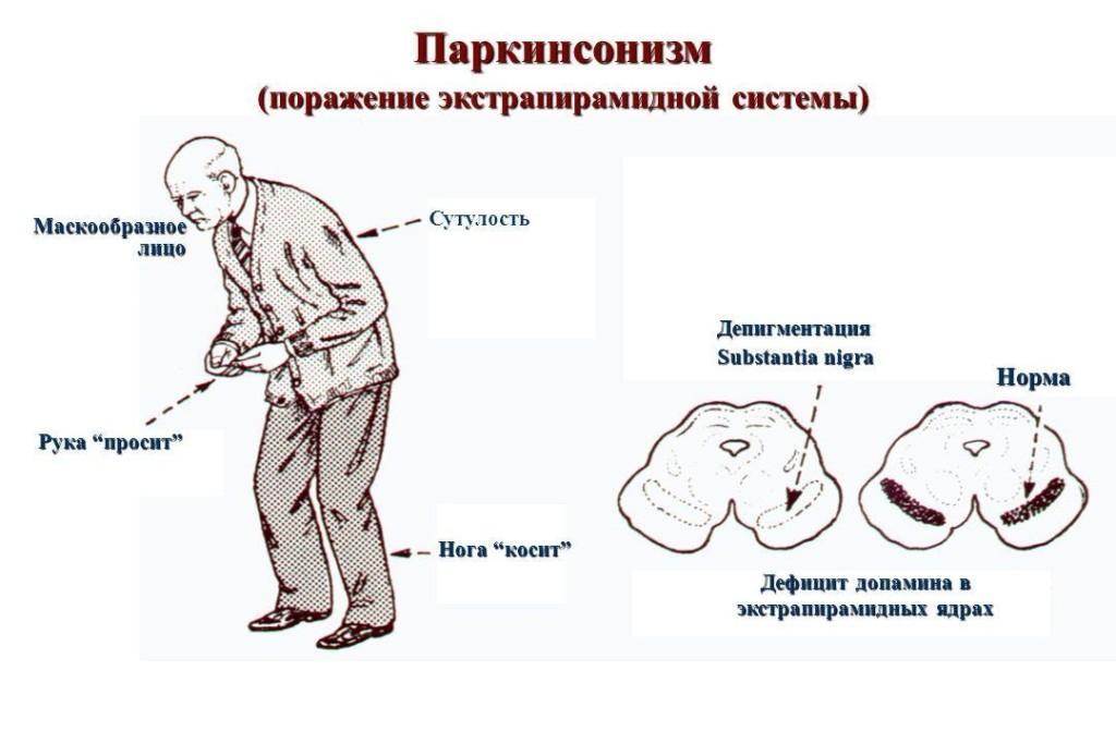 Ригидная форма Паркинсона