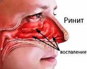 Симптомы вазомоторного ринита