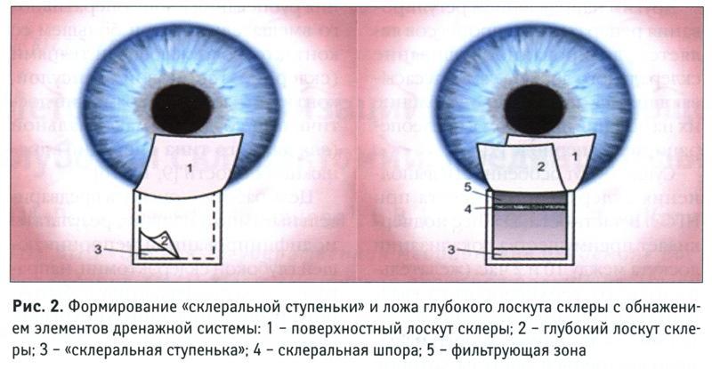 после операции глаукомы глаз не видит