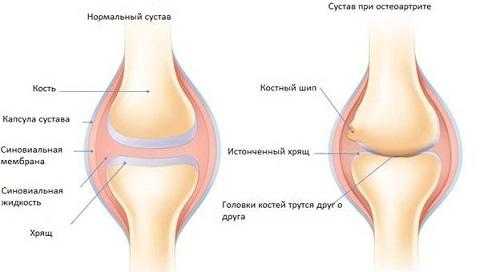 Сустав при артрите