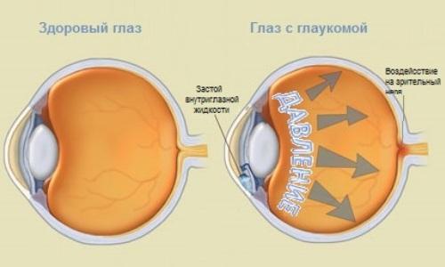 Схема глаза