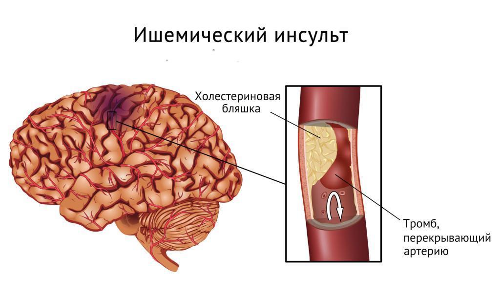 Схема ишемического инсульта Показать на странице  Открыть в полном размере