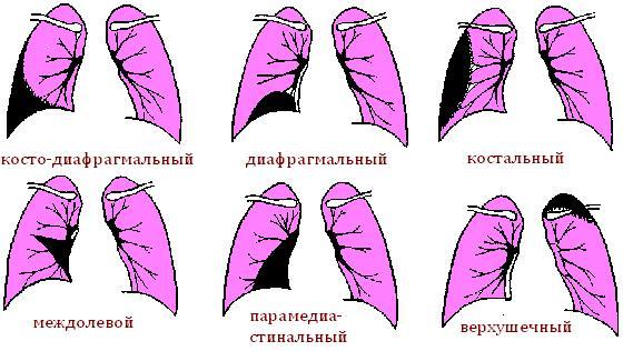 Схема плеврита
