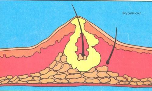 Схема фурункула