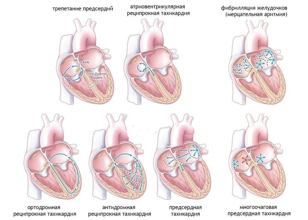 Аритмия сердца симптомы и лечение названия таблеток