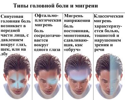 Типы головной боли и мигрени