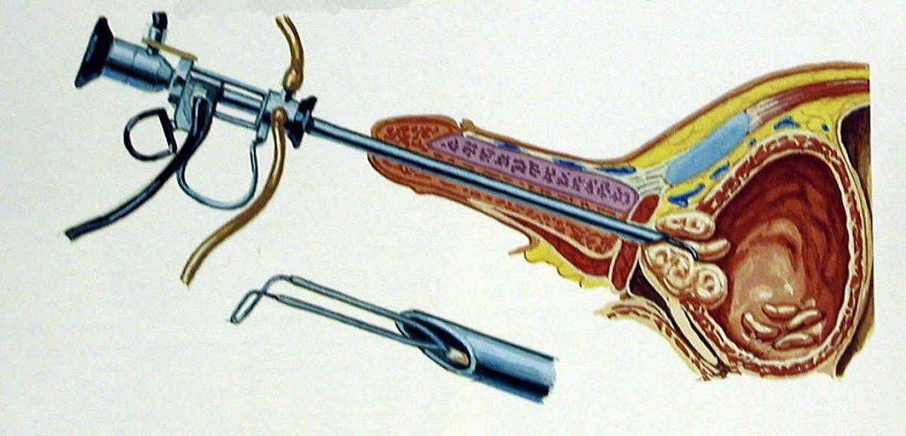 Трансуретральная резекция предстательной железы (ТУР простаты) используется в 90% случаев при лечении аденомы простаты