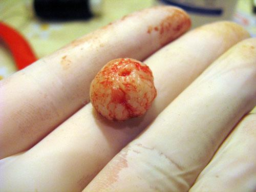 Герпес ануса симптомы   herpesguru