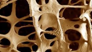 Уменьшение плотности костей