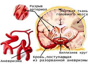Церебральный атеросклероз сосудов головного мозга - схема